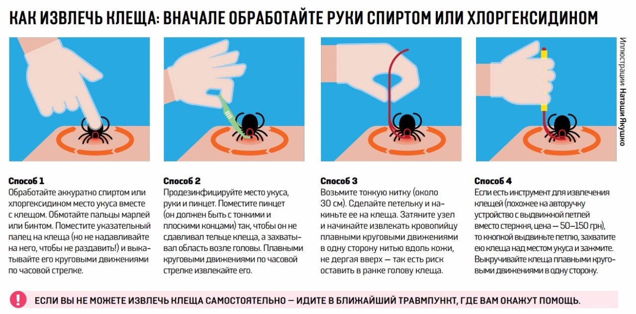 Как убрать клеща в домашних условиях