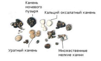 Виды камней в мочевом пузыре и почках