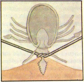 Как снять клеща ниткой